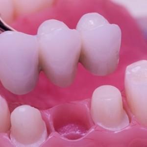 Corona Dental.
