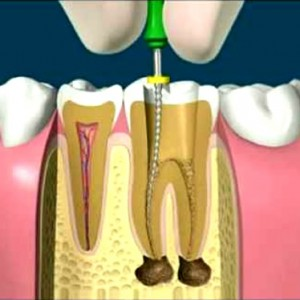 Endodoncia Dental.