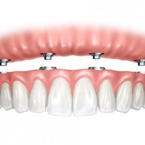 Protesis Dental.